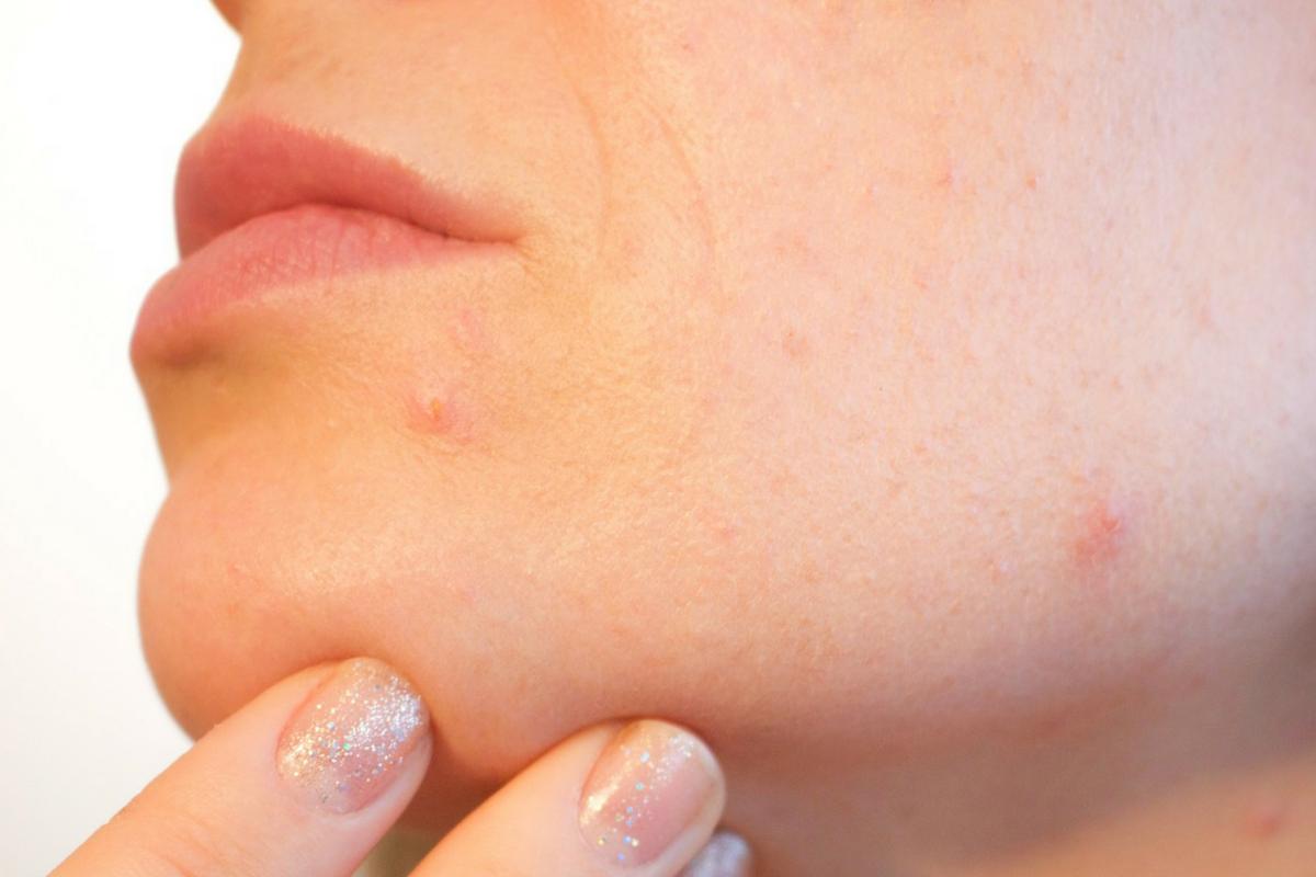 Alimentos que provocan acné