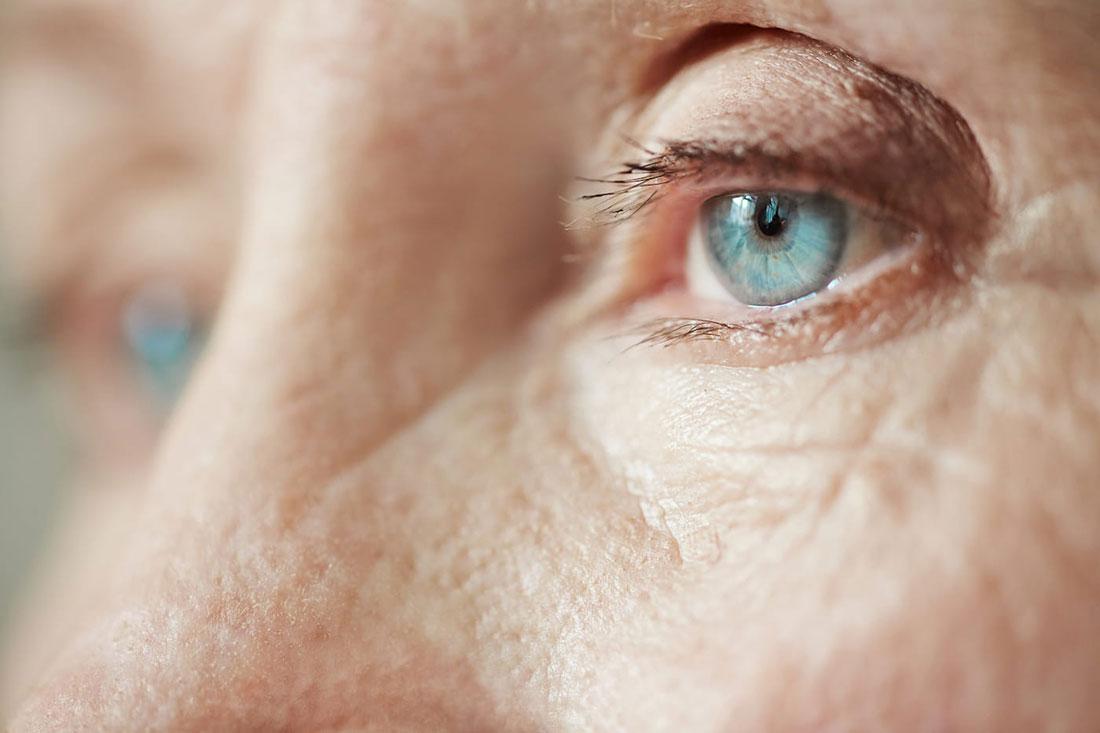 Glaucoma en personas mayores